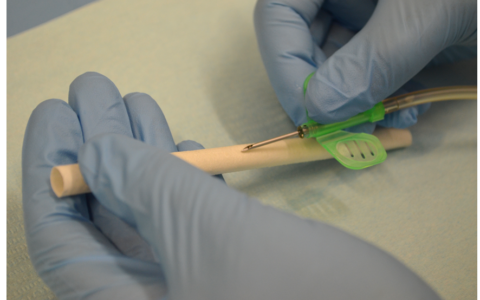 LIFTT punta su Dialybrid e apre una nuova frontiera nell'emodialisi